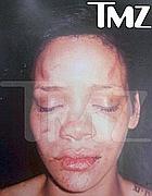 Rihanna dopo l'aggressione